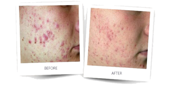 acne3-600x306_edited.png