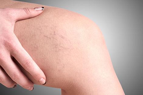 varicose veins in women.jpg