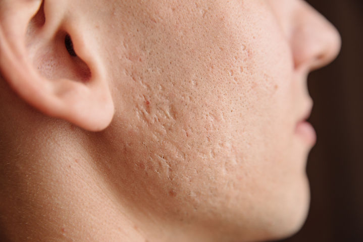 Close-up of problem skin with deep acne