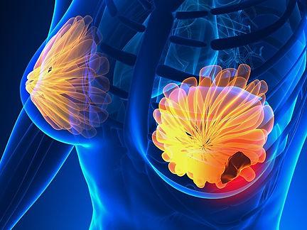 dt_180110_breast_cancer_800x600.jpg