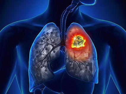 dt_161006_lung_cancer_800x600.jpg