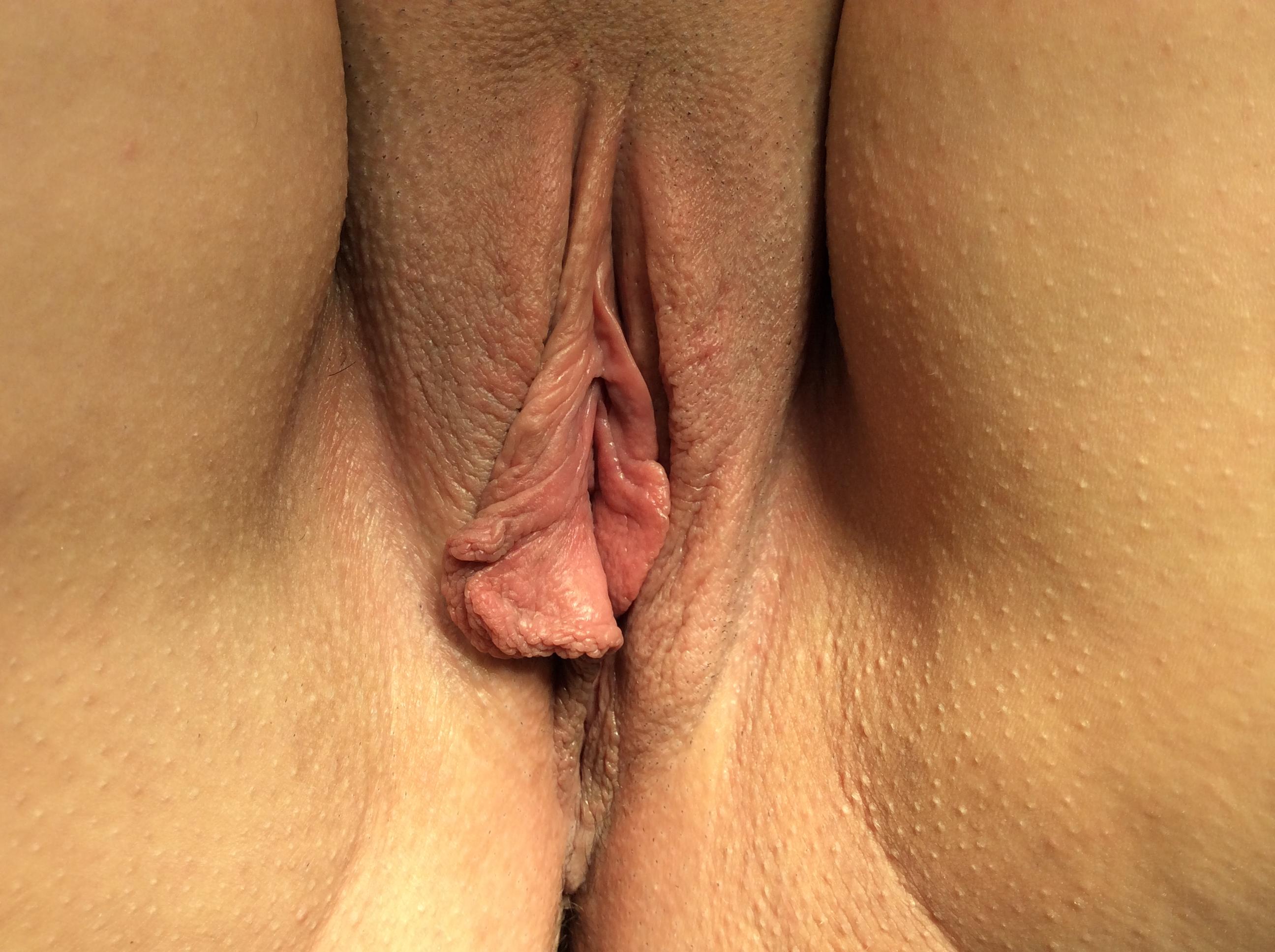 Pre Labiaplasty