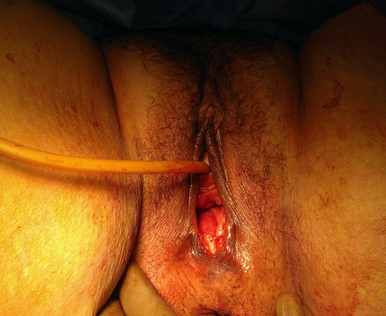 Pre vaginal rejuvenation