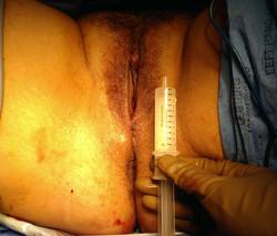 After vaginal rejuvenation