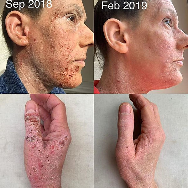 _Healing Eczema is Possible__._21 months