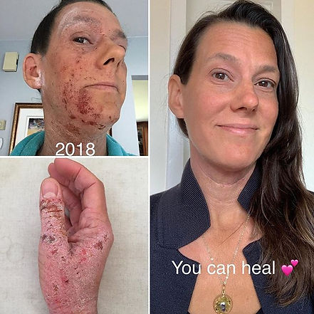 _Eczema Awareness Month__.jpg