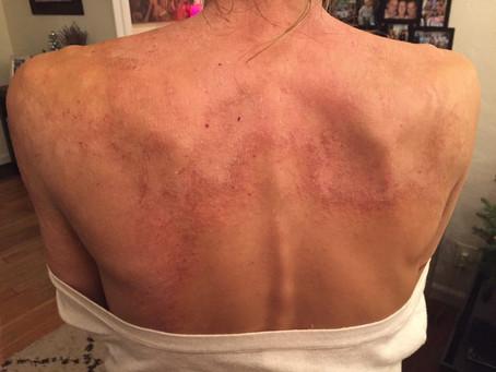 The True Cause Of Eczema