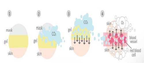 Advantage of carboxy co2 gel mask pack