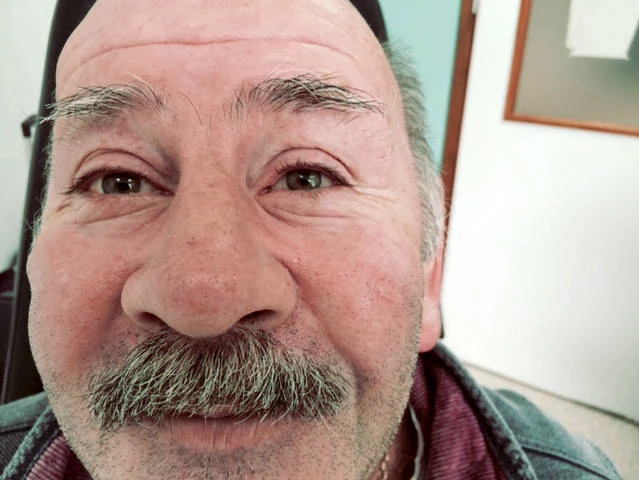 Man with a prosthetic eye (and a great moustache!)