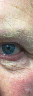 Man waring a prosthetic eye