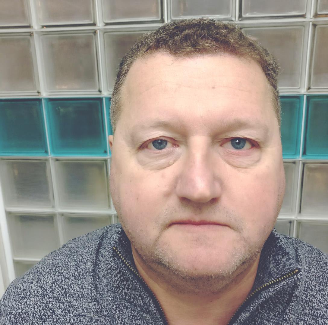 Man wearing a prosthetic eye