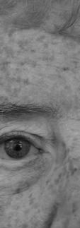 Elderly lady wearing a prosthetic eye
