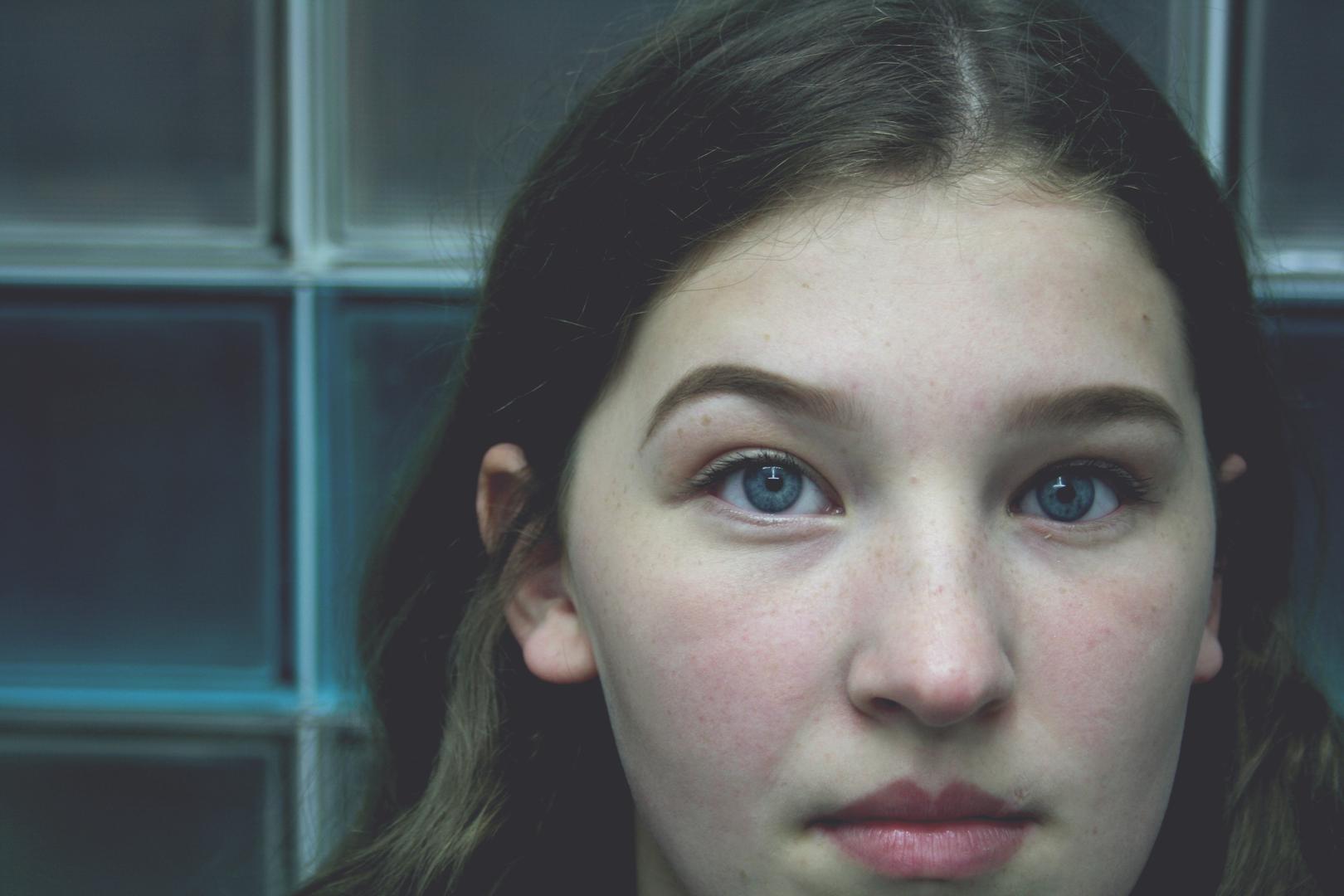 Young girl wearing a prosthetic eye