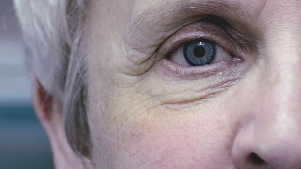 Lady wearing a prosthetic eye