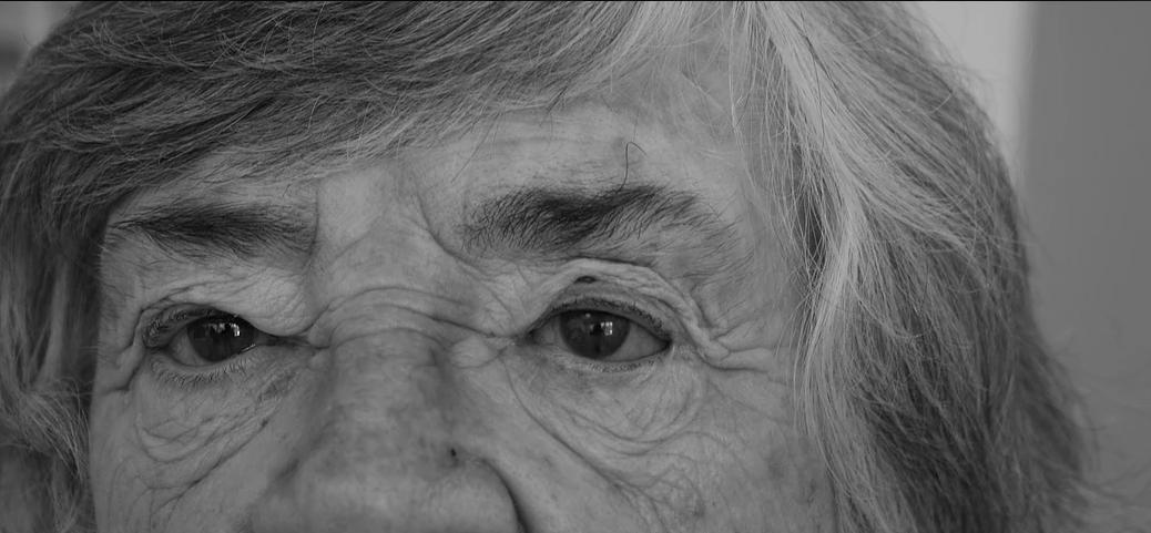 Elderly woman wearing a prosthetic eye
