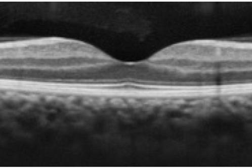 Module 4- Optical Coherence Tomography (OCT)-  5/21/20-10 am. EST