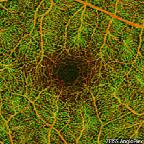 Module 5 -Optical Coherence Tomographic Angiography-  5/21/20-11:30 EST