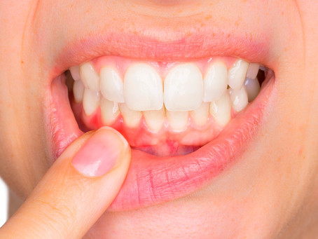 Estudo identifica interação bacteriana que promove a doença periodontal