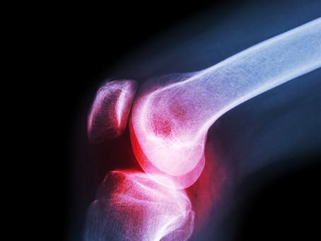 Antidepressivo pode ser a primeira terapia modificadora na osteoartrite