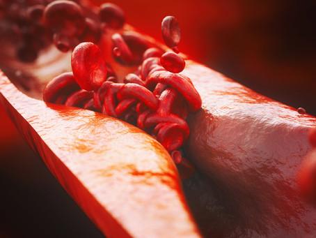 Identificado fator de risco genético de aterosclerose independente do colesterol
