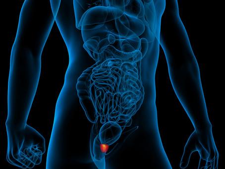 Escore genético de risco de câncer de próstata em grupo multiétnico
