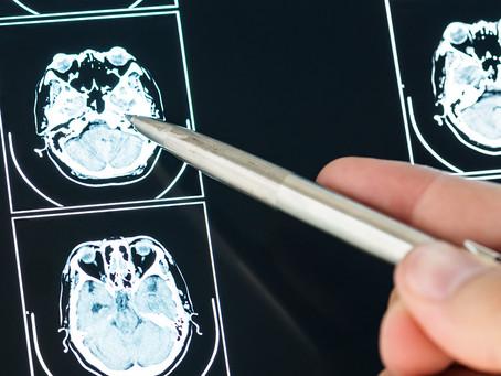 Estudo desvenda como neurônios dopaminérgicos regulam sua comunicação