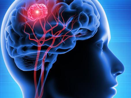 Em curso os primeiros testes clínicos de vacina contra gliomas cerebrais