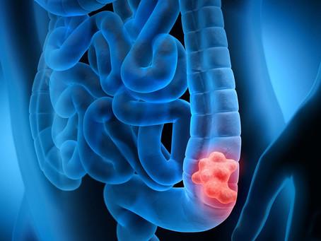 Nanotecnologia utilizada com sucesso contra o câncer colorretal