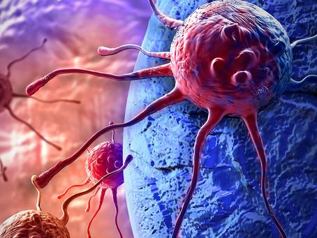 Direcionar o metabolismo do lactato em tumores pode melhorar a imunoterapia