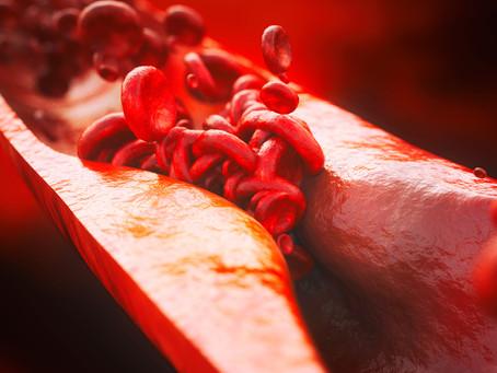 Edição gênica in vivo reduz níveis de colesterol em longo prazo