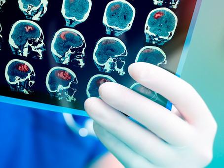 Estudo vincula glioblastoma a processos de regeneração cerebral após lesão