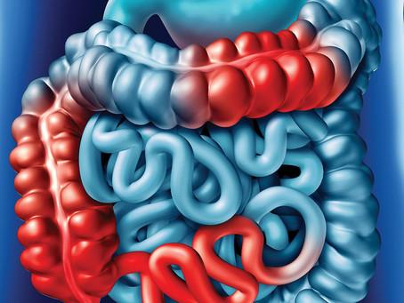 Fungo ligado a alimentos dificulta a cicatrização da mucosa na doença de Crohn