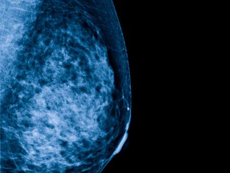 Patógeno intestinal identificado como possível drive no câncer de mama