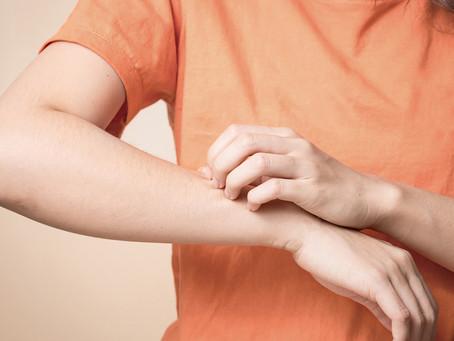 Estudo identifica fator chave no prurido crônico da dermatite atópica
