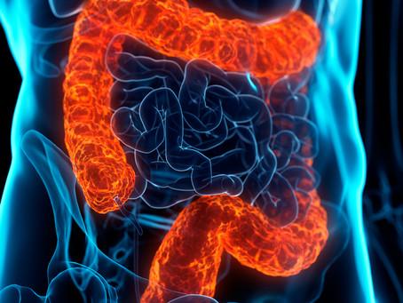 Estudo identifica mecanismo crítico ligado à metástase no câncer colorretal