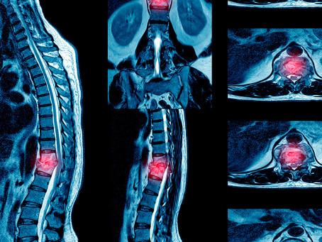 Citocinas projetadas devolvem o movimento após lesão medular