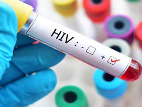 Estudo sugere a metformina como terapia adjuvante potencial contra o HIV