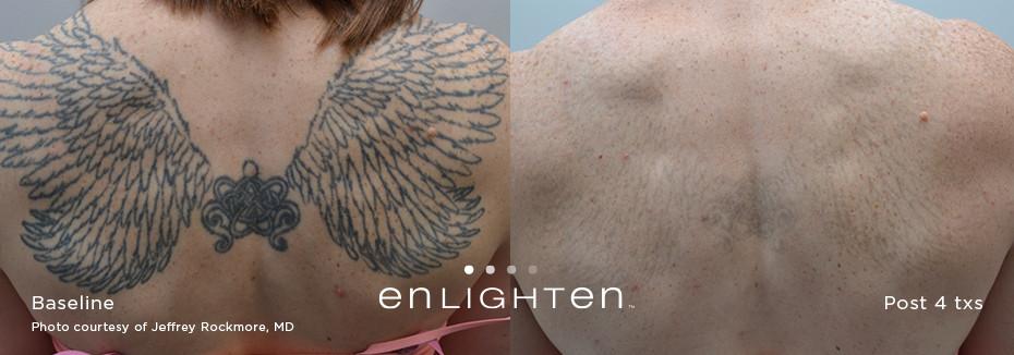 Best Tattoo Removal Near me