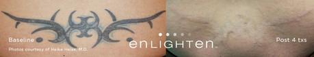 enlighten tattoo removal new orleans
