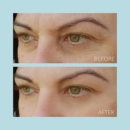 Nadia Skin Care Eyes Before and After_Dr