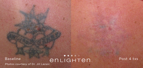 Tattoo Removal Mandeville