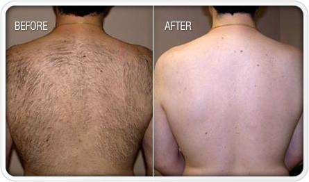 Laser Hair Removal Men Mandeville