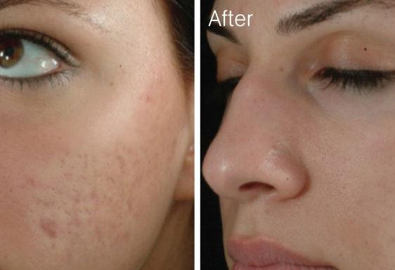 Laser Face Treatment Mandeville