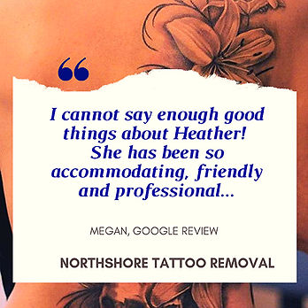 Northshore Tattoo Removal Review