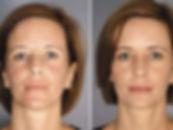 Erbium YAG Laser Facial