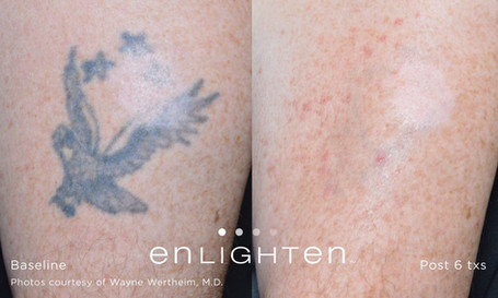 Tattoo Removal Before and After Images | Covington