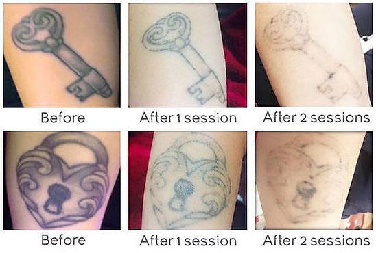 enlighten III northshore tattoo removal