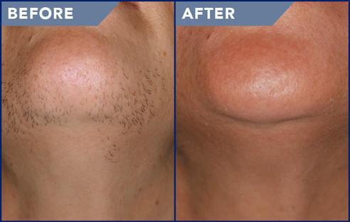 Laser Hair Removal Covington