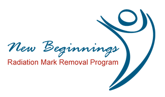 Making a difference in cancer patients' lives:  Radiation Mark Removal Program