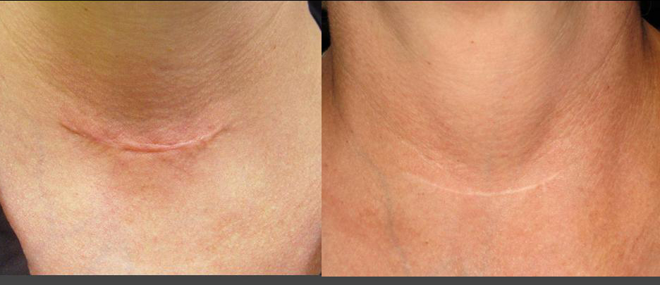 Laser Genesis Before and After